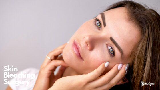 Skin Bleaching Surgery