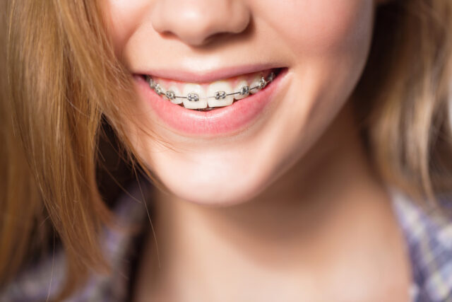 5 Tips to decrease the discomfort after Braces Tightening