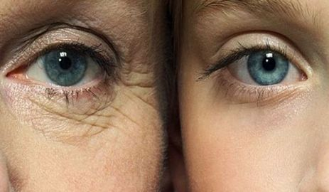 6 Tips that help to remove under-eye lines and wrinkles