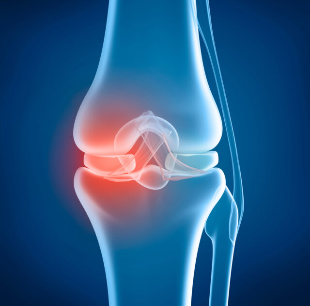 Double Knee Replacement Pros and Cons