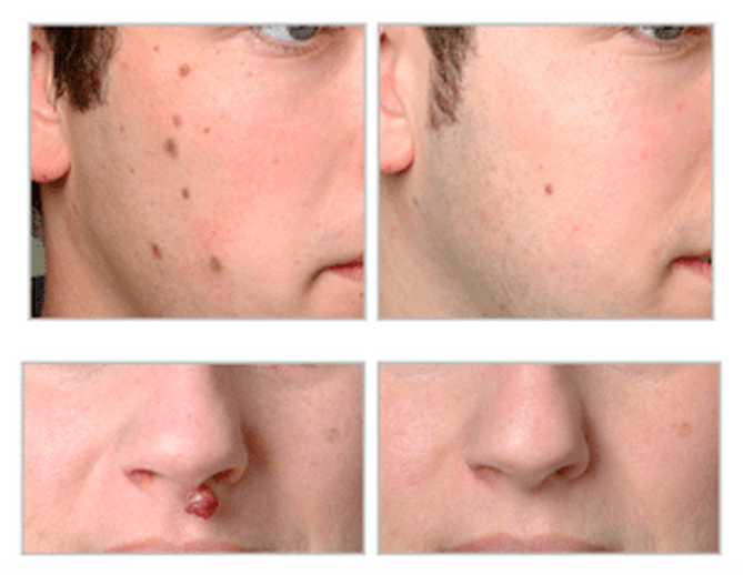 How does Laser Mole Removal Work