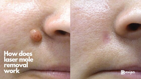 How does laser mole removal work (1)