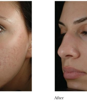 How to use Microdermabrasion on Dark Skin