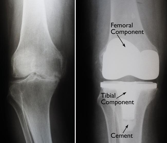When should I have a double knee replacement done
