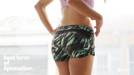 best form of liposuction