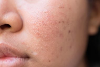 Types of acne scars treated