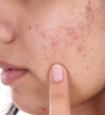 What causes acne and skin discoloration