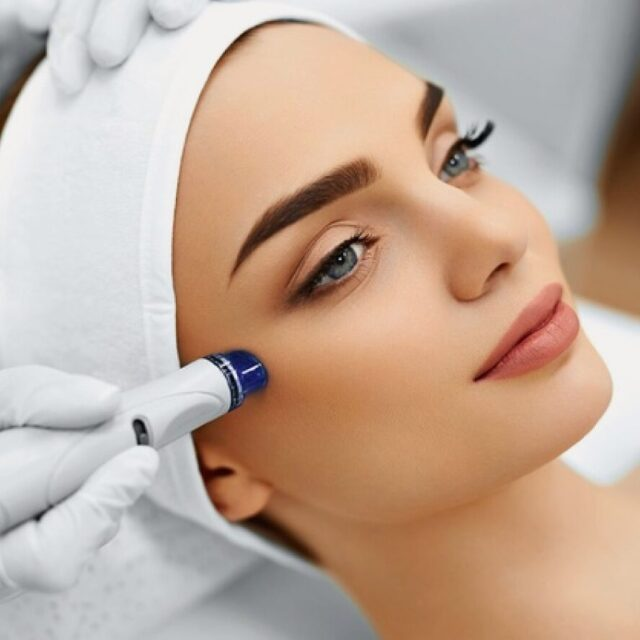 What is Microdermabrasion